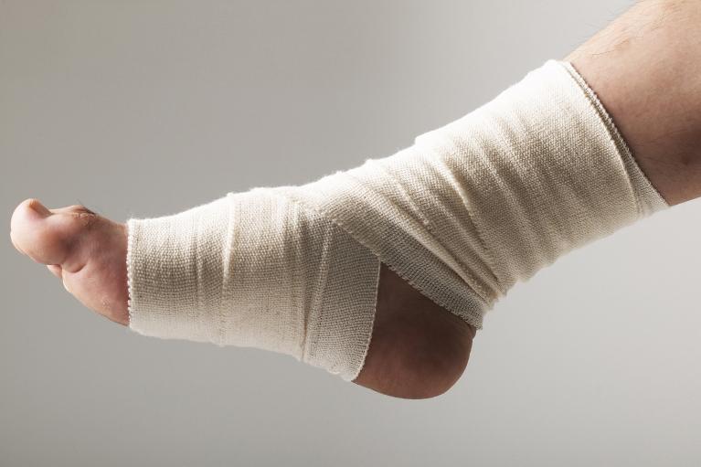 骨折、捻挫、脱臼、打撲